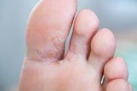Dry skin between  toes